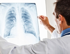 X-Ray Tubes